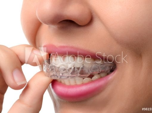 Short Term Adult Orthodontics